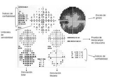 campo visual computarizado