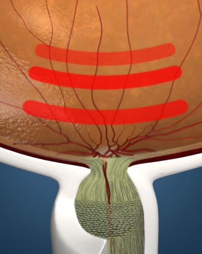 prueva de provocacion de glaucoma