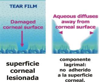 tear film break up