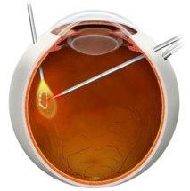 vitrectomia desprendimiento vitreo