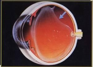 desprendimiento vitreo