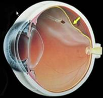 desprendimiento de vitreo agujero de retina