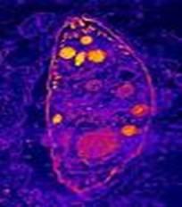 Si suben los linfocitos por las lombrices