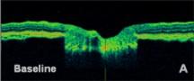 oct glaucoma