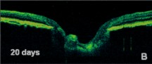 tomografia optica coherente