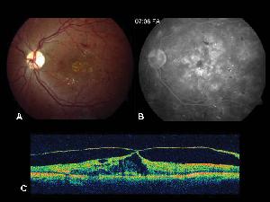 tomografia optica coherente oct en retinopatia diabetica