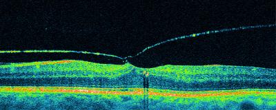 tomografia optica coherente oct en desprendimiento de vitreo posterior