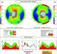 tomografia optica coherente en glaucoma