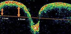 Tomografía óptica coherente OCT en Drusen de nervio óptico