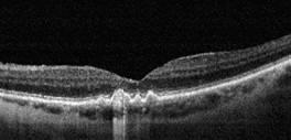 tomografia optica coherente oct drusas
