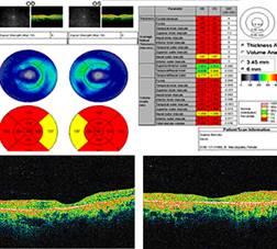 tomografia optica coherente oct cloroquina hidroxicloroquina